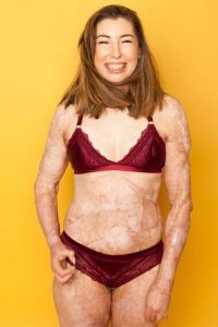 Catrin Pugh showing off her 96% burn scars to the world in stunning underwear